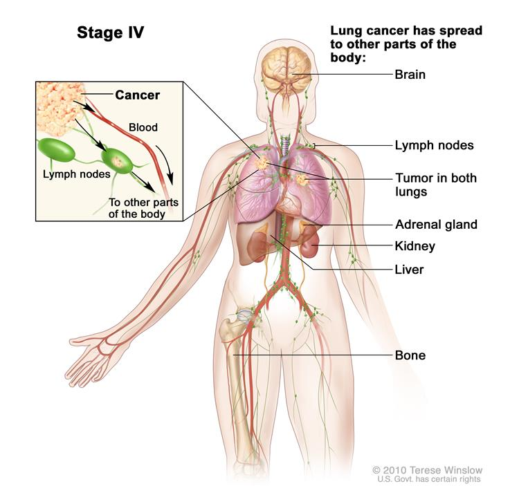 Stage 4 Lung Cancer >> Non Small Cell Lung Cancer From The Patient S Perspective Mdalert Com