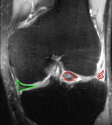 Surgery for Torn Meniscus in the Knee is Often Unnecessary