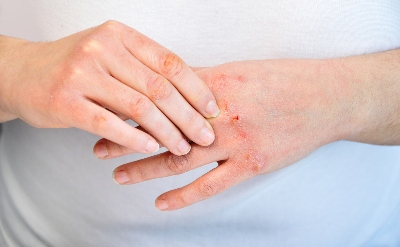 Dupilumab Quickly Improves Itching Symptoms in Atopic Dermatitis